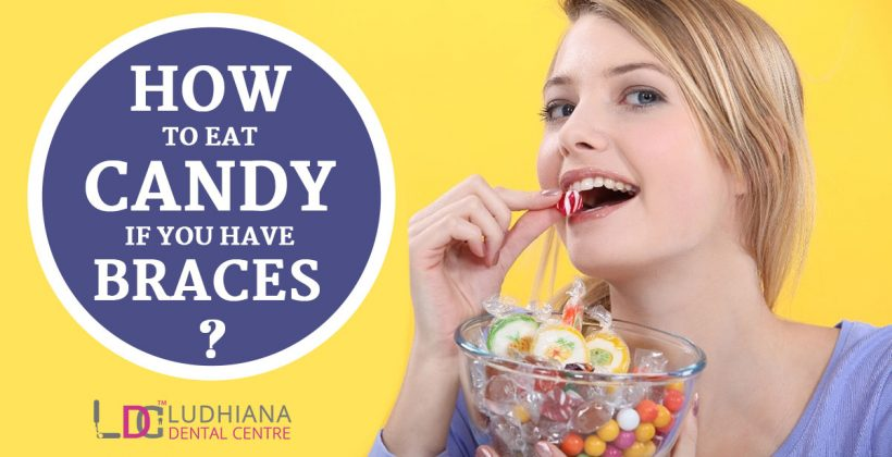 How to Eat Candy if You have Braces?