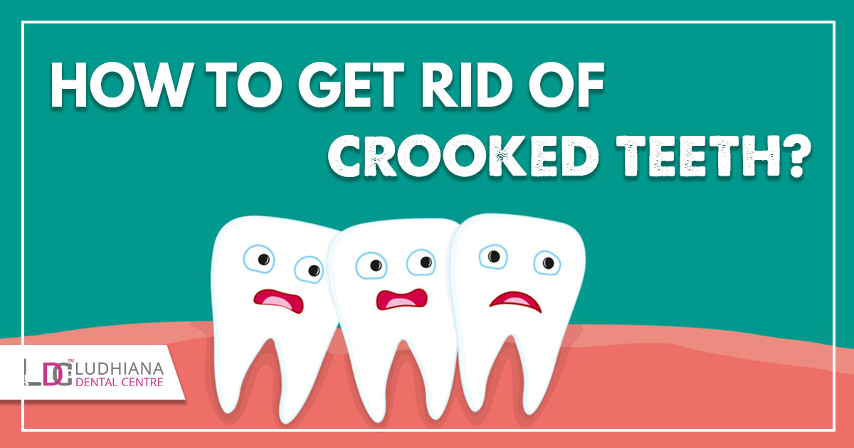 How to get Rid of Crooked Teeth?