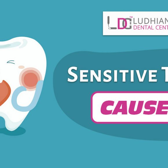 Sensitive Teeth: Causes