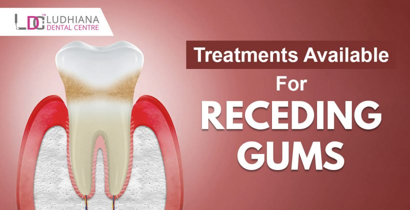 Treatments available for receding gums