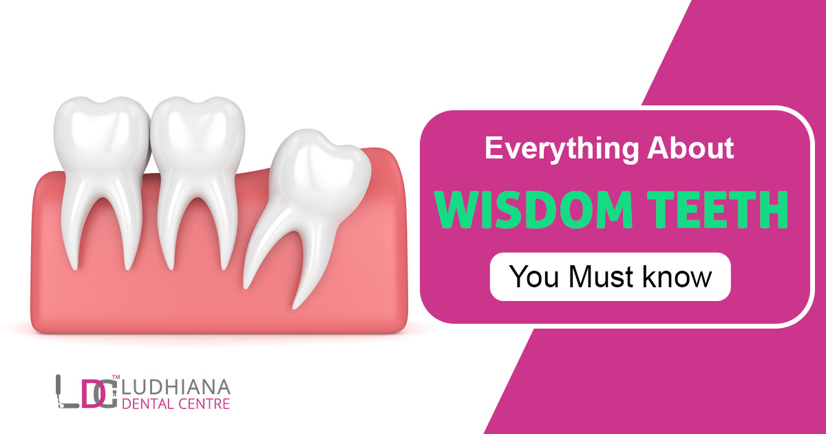 Everything About Wisdom Teeth You Must Know