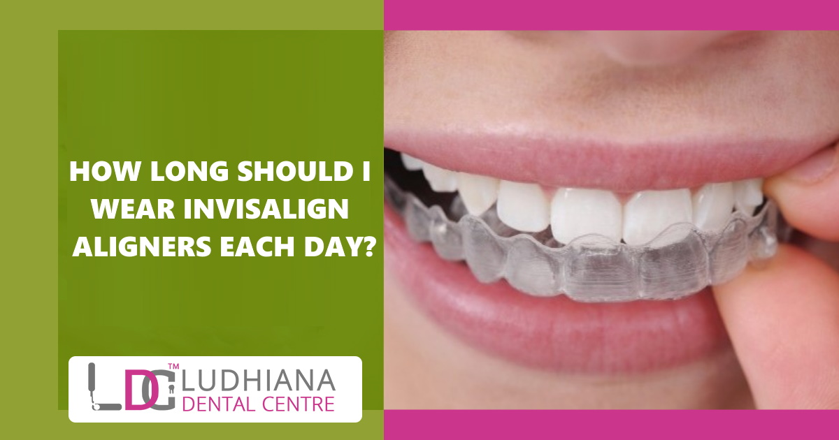 How Long Should I Wear Invisalign Aligners Each Day?