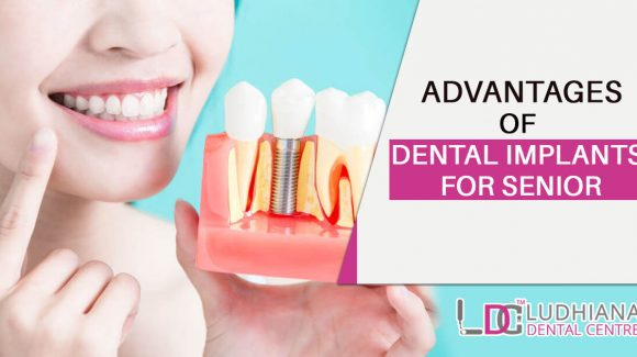 Advantages of Dental Implants for Senior
