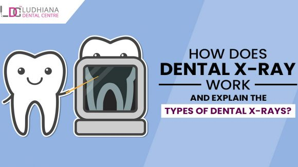 How does dental x-ray work and explain the types of dental x-rays?
