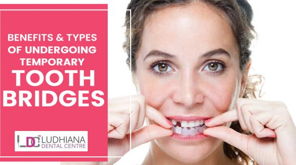 What are the benefits and types of undergoing temporary tooth bridges?