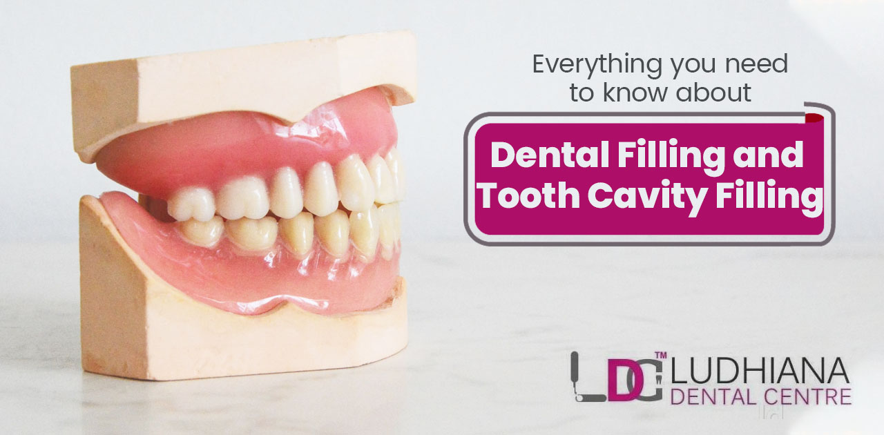 Everything you need to know about Dental filling and tooth cavity filling