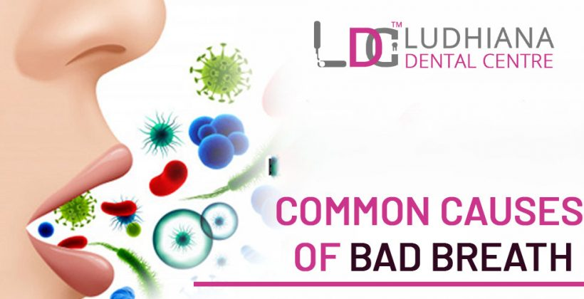 What are the top reasons to follow the dental care regime for bad breath?
