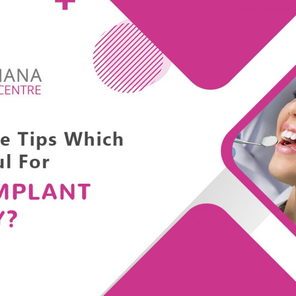 What are the tips which prove helpful for dental implant recovery?