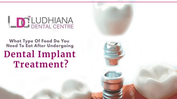 What type of food do you need to eat after undergoing dental implant treatment?