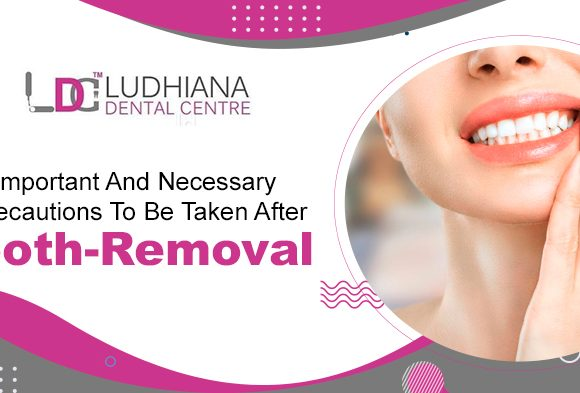 Important and necessary Precautions to be taken after Tooth-removal