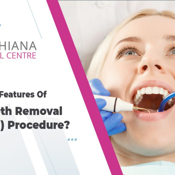 What are basic features of  wisdom tooth removal (withdrawal) procedure?