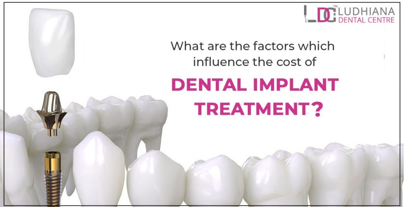 What are the factors which influence the cost of dental implant treatment?