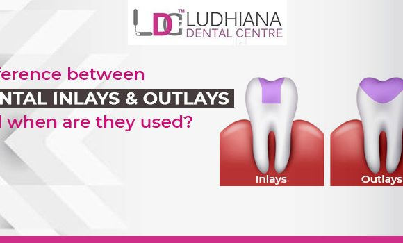 Difference between Dental inlays and outlays and when are they used?