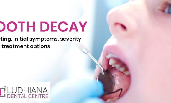Tooth decay – Starting, Initial symptoms, severity and treatment options.
