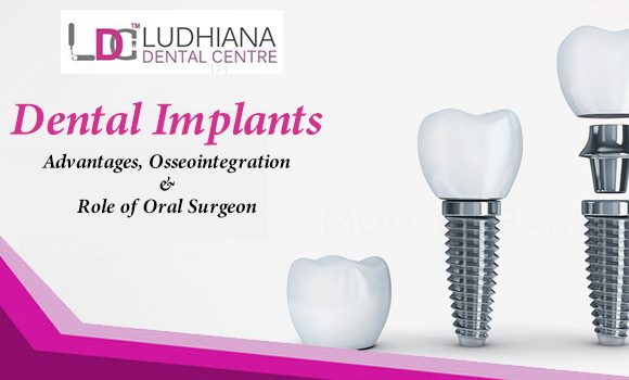 Dental implants – Advantages, Osseointegration & Role of Oral Surgeon